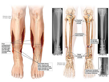 Bilateral Lower Leg Fasciotomies and Intramedullary Nailing of the Tibia