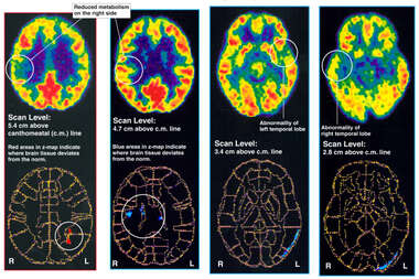 Positron Emission Tomography (PET) Scans
