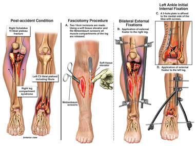 Leg Injuries with Surgical Procedures