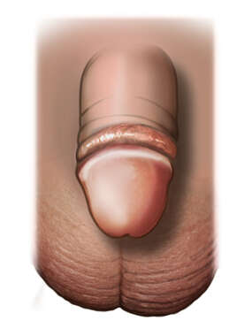Anterior View of a Circumcised Black Toddler Penis