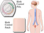 Birth Control Devices