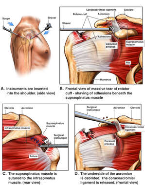 Right Shoulder Surgery