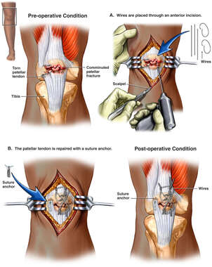 Right Knee Injury with Surgical Fixation
