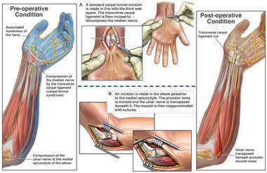 Nerve Compressions in the Left Arm with Surgical Repairs