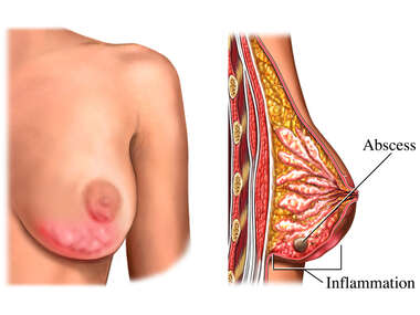 Mastitis: Inflammation of the Breast