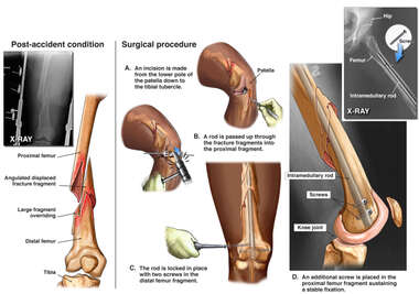 Right Distal Femur Fracture with Surgical Fixation