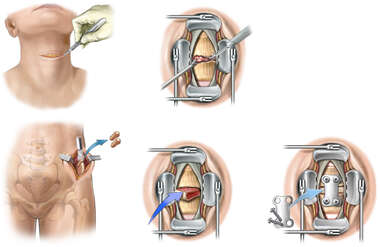 C4-5 Disc Herniation with Anterior Cervical Discectomy and Spinal Fusion Surgery