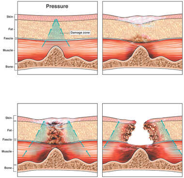 Development of Pressure Ulcer
