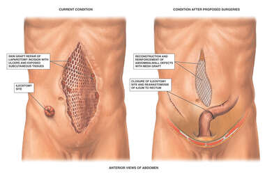 Male Abdomen with Abdominal Wall Defects and Proposed  Surgical Repairs
