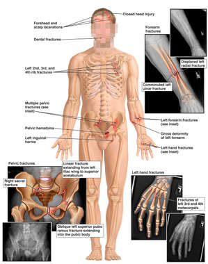 Male Figure with Orthopedic Fractures to the Hip, Forearm and Hand