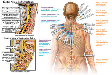 Cervical & Lumbar Spine Injuries with Multiple Injections