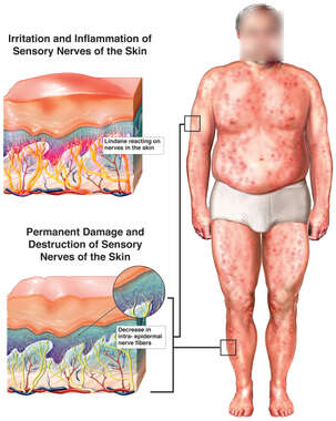 Permanent Damage and Destruction of Sensory Nerves of the Skin Due to Apllication of Lindane