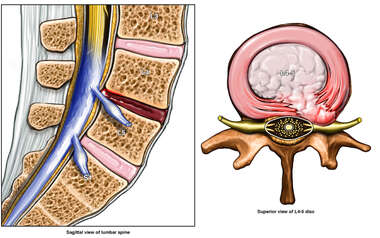 Recurrent Lumbar Disc Herniation