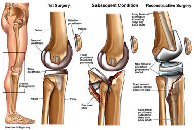 Severe Leg Fracture Caused by Dropping Patient After Knee Prosthesis Surgery
