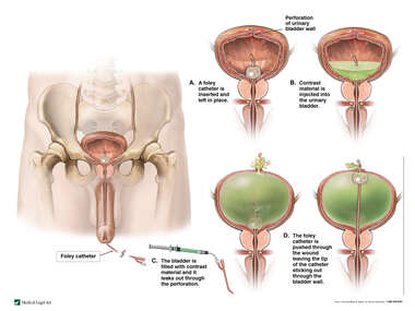 Examination of the Urinary Bladder with Perforation of the Bladder Wall