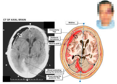Fatal Intracranial hemorrhage