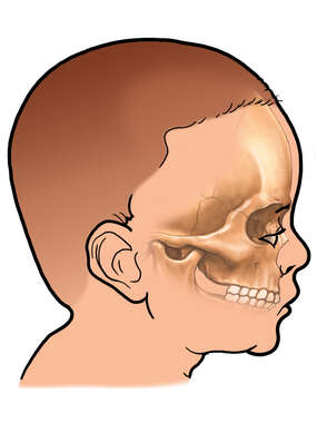Orientation of Zygomatic Arch in a Child
