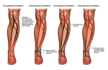 Progression of Arterial Thrombosis