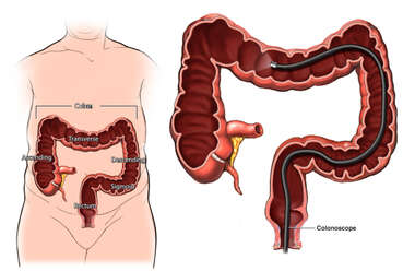 Normal Anatomy of Colon and Placement of Colonoscope