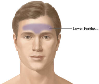Frontal Sinusitis (Associated Regions of Pain)