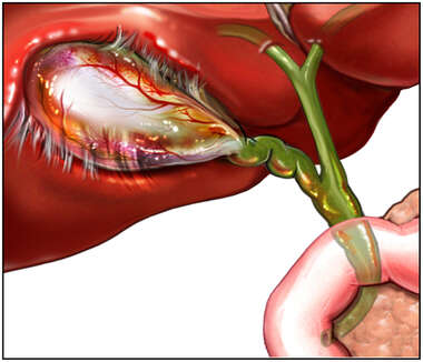Pre-operative Condition with Inflamed Gall Bladder-Cholecystitis