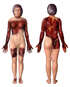 Burn Injuries to tbe Head, Upper Extremities, Chest Back and Thighs