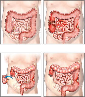 Surgical Resection of Colon Cancer