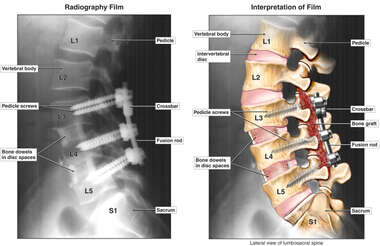 Anterior Interbody and Posterolateral Lumbar Fusion