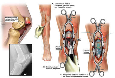 Right Knee Injury with Surgery