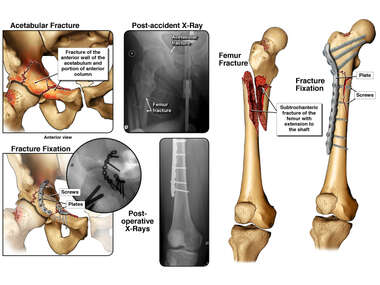 Right Femur and Acetabular Fractures