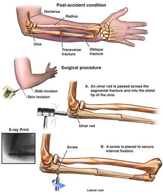 Surgical Fixation of the Right Ulna