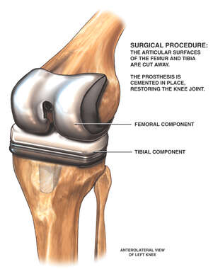 Total Knee Joint Replacement Procedure