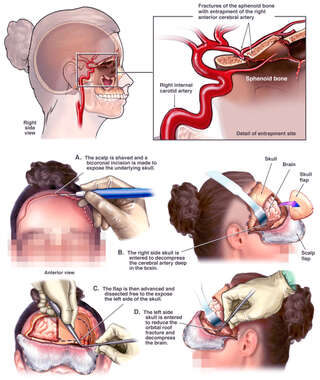 Brain Surgery - Entrapped Right Anterior Cervical Artery with Craniotomy Repair Surgery