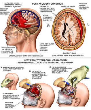 Brain Surgery -  Traumatic Brain Hemorrhage with Craniotomy Procedure