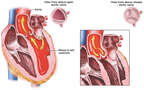Aortic Valve Function