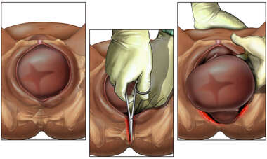 Episiotomy with Release of Shoulder Dystocia