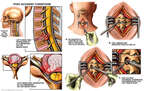Cervical Disc Herniation with Laminotomy and Discectomy Procedures