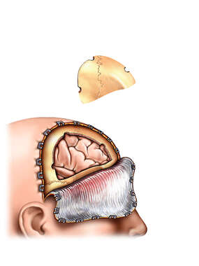 Craniotomy - Bone Flap