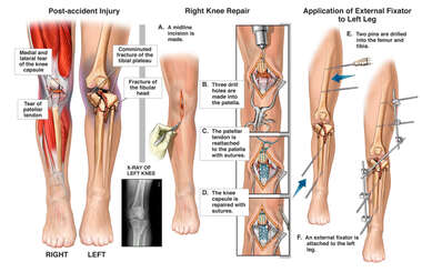 Bilateral Knee Injuries