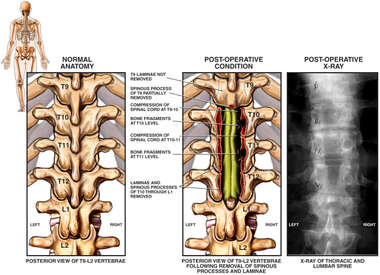 Post-operative Condition with Spinal Decompression- Posterior View