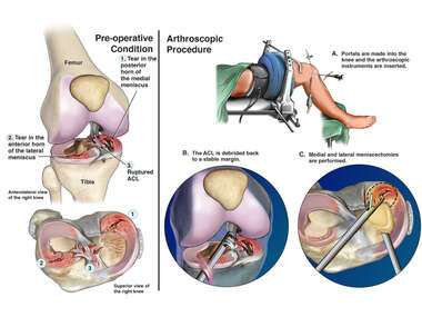 Right Knee Injury with Arthroscopic Surgical Repair