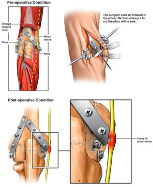 Surgical Extraction of Hardware with Resulting Injury to the Ulnar Nerve