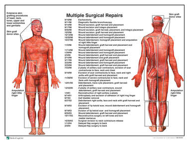 Total Body Burn Injuries with Multiple Surgical Repairs