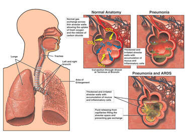 Pneumonia and Acute Respiratory Distress Syndrome (ARDS)