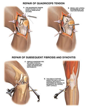 Open and Arthroscopic Surgical Repair of Post-accident Knee Injuries