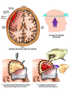 Post-accident Head Injuries with Surgical Craniotomy and Evacuation of Hematoma
