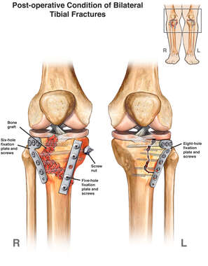 Post-operative Condition Following Fixation of Bilateral Tibial Fractures