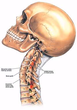 Limited Cervical Vertebrae Extension Due to Incorrect Spinal Fusion Surgery