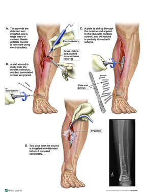 Surgical Fixation of Left Lower Leg Fracture and Closure of Complex Laceration