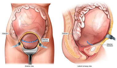 Uterine Incision for Cesarean Delivery